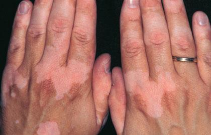 La pigmentation sombre sur la peau
