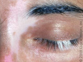Vitiligo behandeling